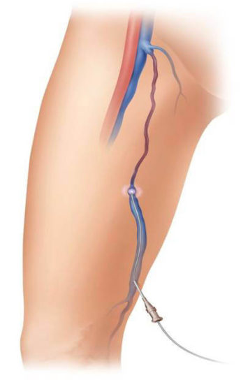 endovenous-laser-therapy (1)