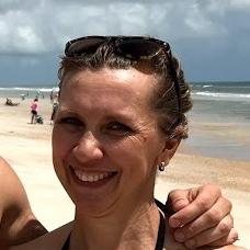 Meryl Thomas-Patient Testimonial for Plam Coast Florida Varicose Vein Specialists